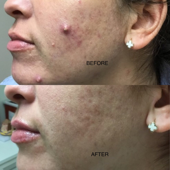 Before and After Cystic Nodule