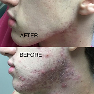 BeforeAfter Photo Acne Left Face